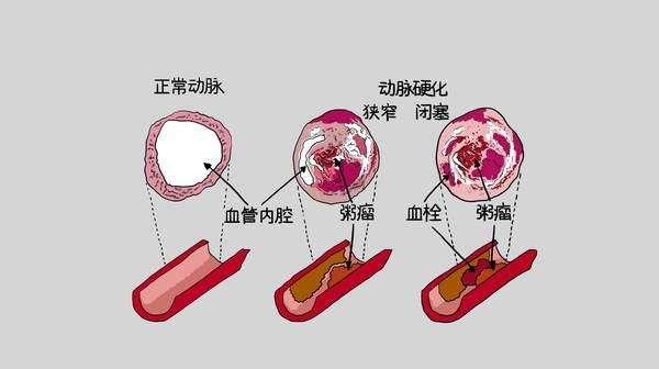 现代名中医冠心病治疗绝技.吴大真等..pdf
