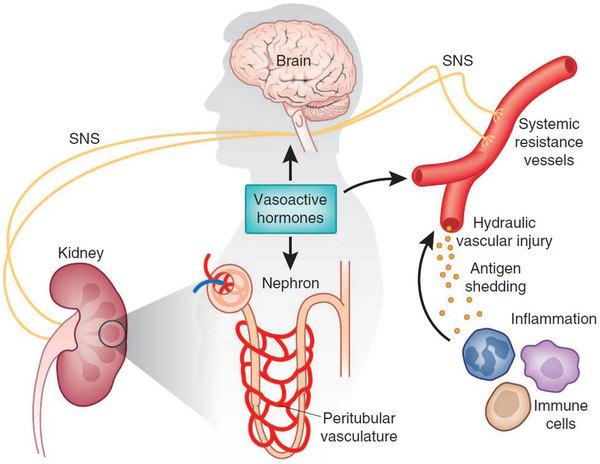 高血压诊断治疗中国专家共识.pdf