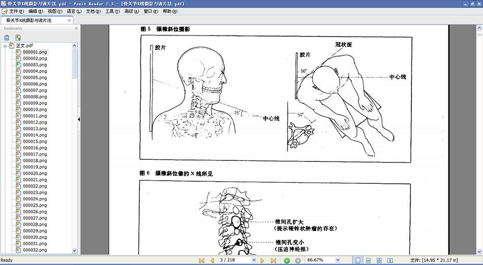 骨关节X线摄影与读片方法.pdf